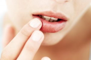 Recurring Cold Sores? #1 Reason You're Getting Frequent Cold Sores