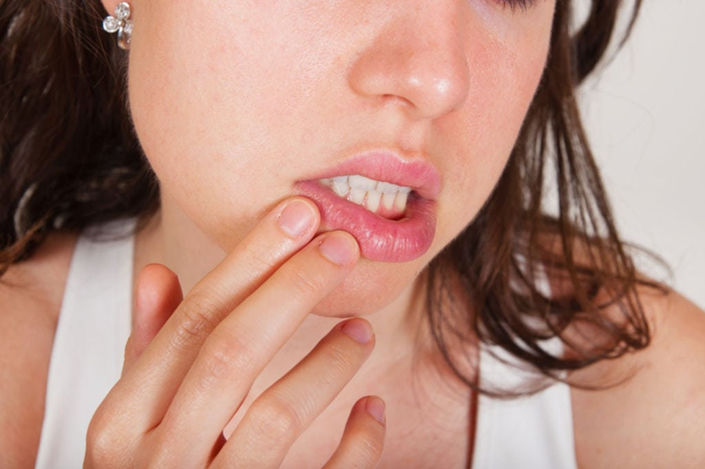 Why Do I Keep Getting Cold Sores? #1 Reason Revealed…